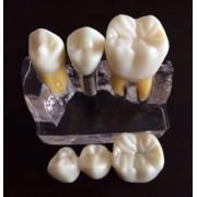 Implant Demonstration Training Model (Transparent)